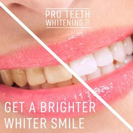 Wittere tanden tandpasta witte tanden